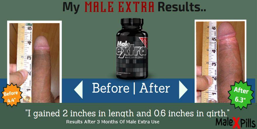 Enhancement pills after penile before Penis Enhancement