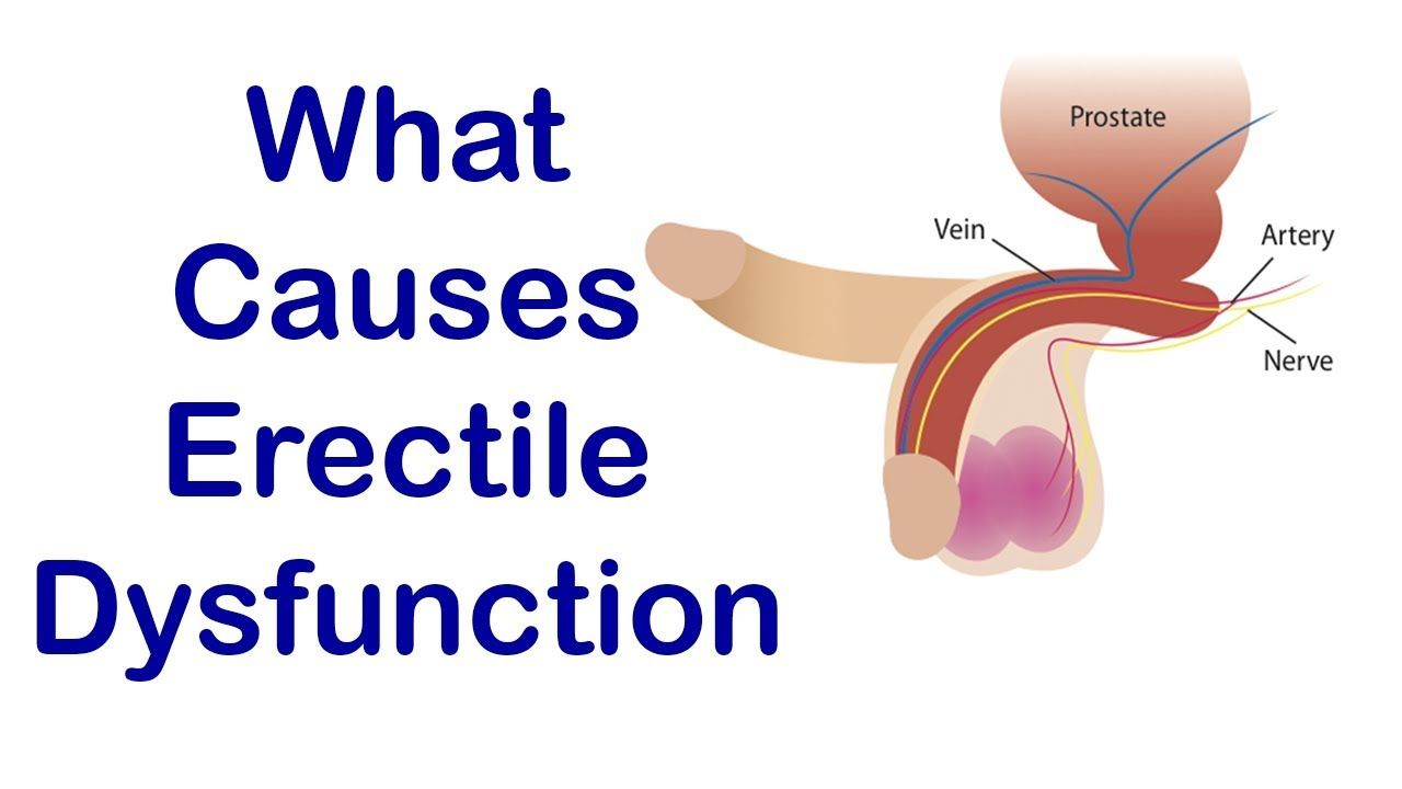 what causes erectile dysfunctions