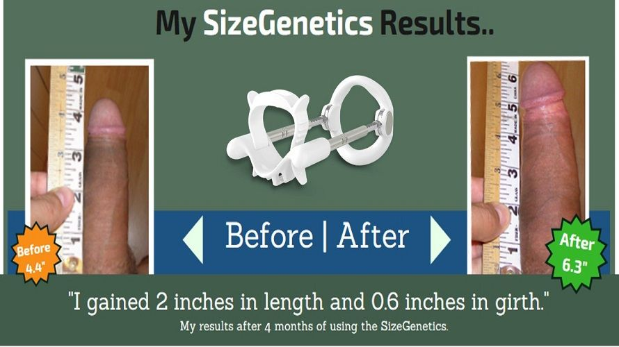 sizegenetics results