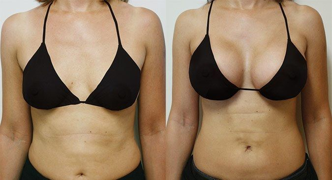 before and after breast size