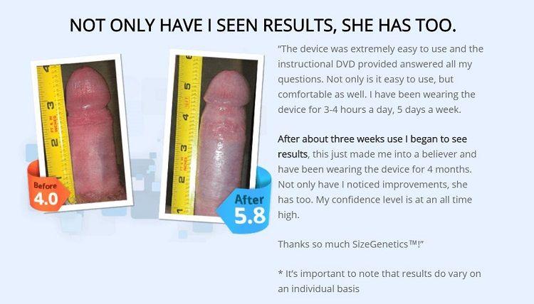 SizeGenetics testimonial